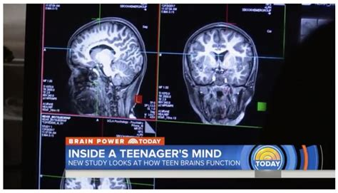 longitudinal study  adolescent brain cognitive