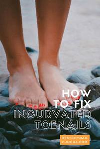 Incurvated Toenails  What Really Works To Fix Them Once