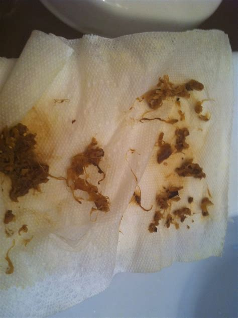 %name How To Do A Coffee Enema   What Does Blood In Stool Look Like   Dark Brown Hairs