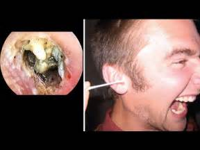 Giant Ear Wax Removal -Painful Blockage - Dr Paul - YouTube Earwax blockage