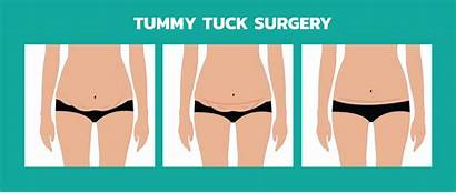 Tummy Tuck Surgery Abdominoplasty Mexico Common Loose