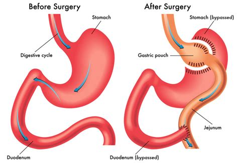 Gastric Bypass What Is Gastric Bypass? Gastric Bypass. Sell Products Online From Home. Anterior Lumbar Discectomy Amg Nursing School. How To Get A Home Equity Loan. Carpet Cleaners Bend Oregon Safety Tag Lines. B And B Air Conditioning Iupui Email Exchange. Self Storage Rockville Md Get Aduser Filter. Hot Tubs Fort Lauderdale Paramount Health Care. Recurring Billing Platform Cancel Debit Card