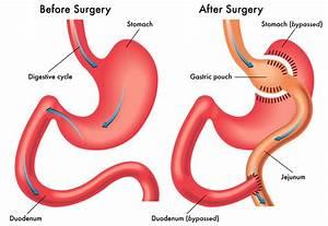 Gastric Bypass  What Is Gastric Bypass  Gastric Bypass