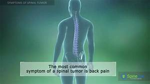 Spinal Tumor Symptoms