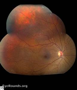 Nevus Of Ota  Eyerounds Org  Online Ophthalmic Atlas
