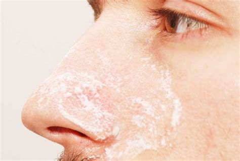 tips  preventing    blackheads