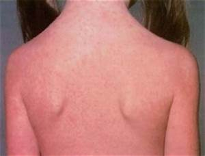 Health and Fitness » German Measles