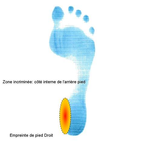 douleur al interieur du pied zone incrimin 233 e c 244 t 233 interne du talon oxa m 233 dical