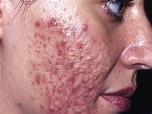 acne cistica foto