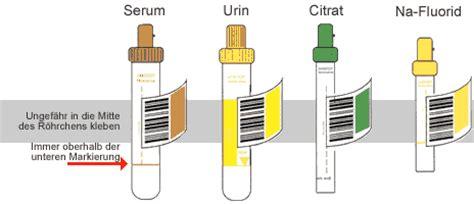 farbe urin