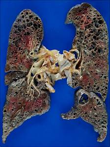 An Autopsy Study Of Combined Pulmonary Fibrosis And Emphysema  Correlations Among Clinical