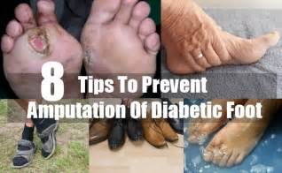 Diabetes Leg Amputation