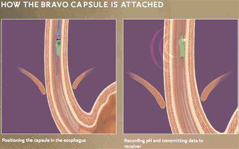 gerd diagnostic technology  bravo capsule leo treyzon md gastroenterologists