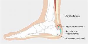 Achilles Bursitis - The Complete Injury Guide