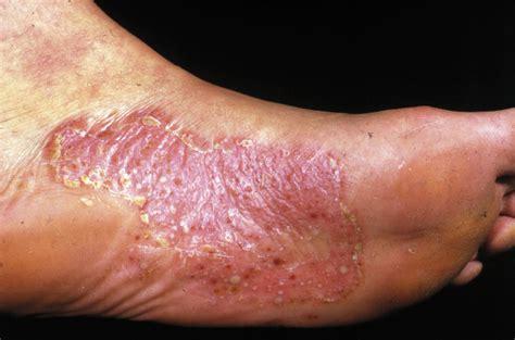 Hudcancer under foten