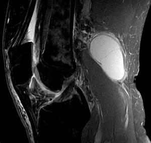 Мази от кисты бейкера коленного сустава