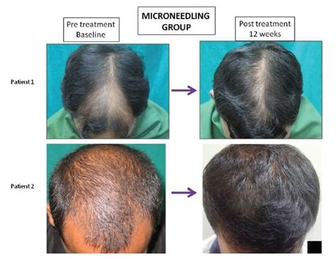 emu oil for hair loss after 3 derma roller microneedling a painful but effective hair loss treatment top hair loss treatments