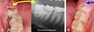 Symptome Dent De Sagesse : les dents de sagesse mythes et r alit s indications pour extraction orthodontiste sherbrooke ~ Maxctalentgroup.com Avis de Voitures