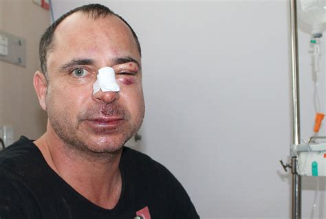 russian gang attack phuket couple  surin beach club