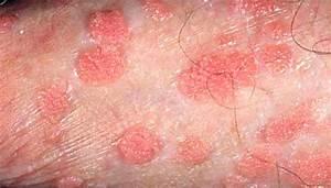 Genital Warts Related Keywords - Genital Warts Long Tail ...