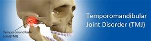 Temporomandibular Joint Disorder Or Tmj Dysfunction