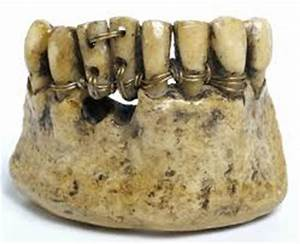 History of Braces | EmbraceYou
