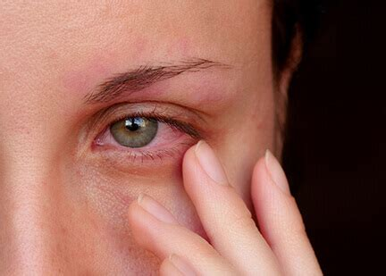 eye infection plymouth eye allergies maple grove