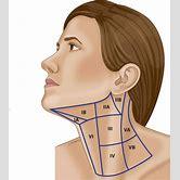 lump-behind-ear-lymphoma