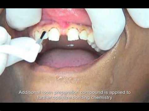 resin bonding sandentistry youtube