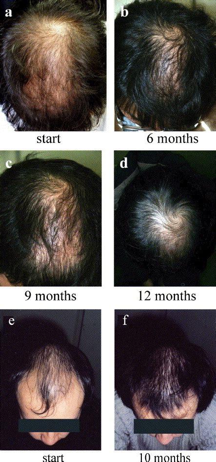 Update Monistat 7 and HairLoss