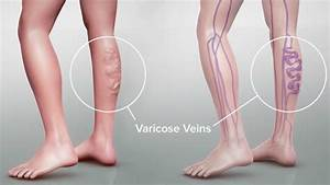 Varicose Vein : Are Your Compression Stockings Itchy?