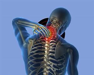 Лечение остеохондроза с5 с6