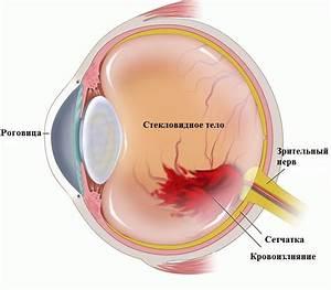 Гипертония кровоизлияние в глаз лечение