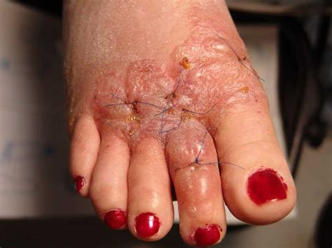 Allergic Contact Dermatitis Of The Foot After Use Of