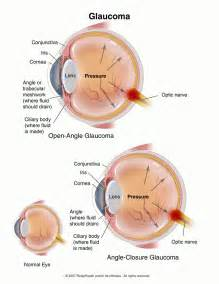 Glaucoma… Steals your Vision…. No Warning - Ho Optometrist  Glaucoma Eyes and Vision