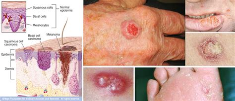 Skin Cancer Pictures Moles Symptoms Signs On Face Spots On