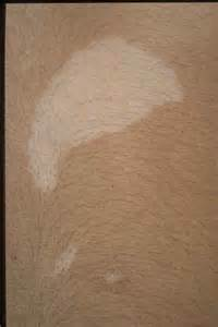 dermatology imagebank pigmentary disorders