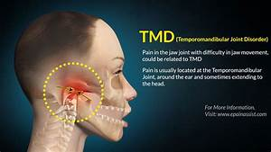 Tmd  Treatment  Exercises  Tips  Causes  Symptoms  Diagnosis