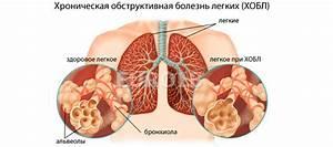Витафон аденома лечение