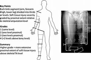Case Suitability For Definitive Through Knee Amputation