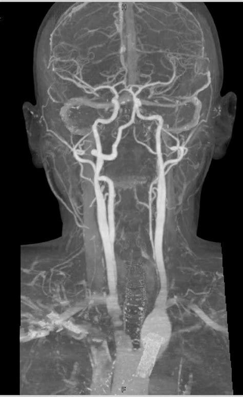 CTA Normal Carotids and Circle of Willis - Neuro Case