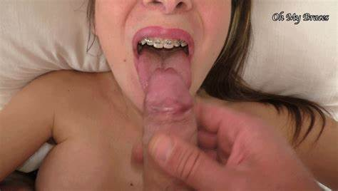 High Dark Nympho With Braces