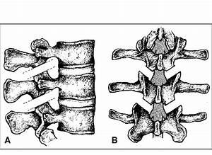 A  B Diagrams Of The Polysegmental Dorsal Lumbar