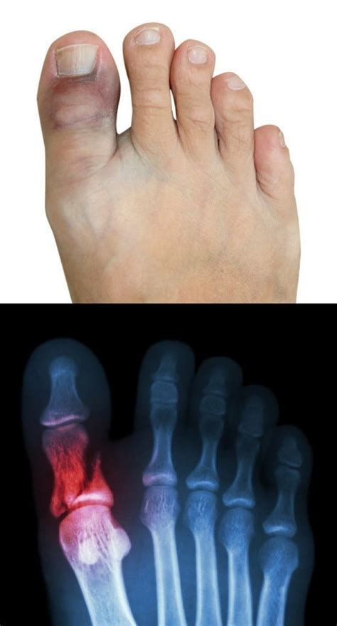 Sprained Toe Vs Broken Toe How To Tell If Your Toe Is. Interior Room Signs Of Stroke. Diet Signs Of Stroke. Cancerous Signs. Cetus Signs. Capricorns Signs. Tired Hungry Signs. Gas Station Signs Of Stroke. Preventable Signs Of Stroke