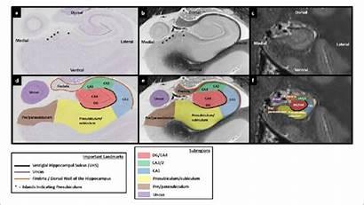 Hippocampus Human Section Subregions Mortem Hippocampal Slice