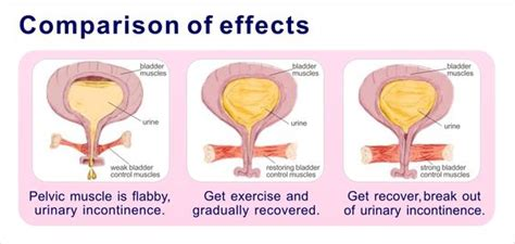 pelvic floor exerciser nz the no bullsh t guide to keeping up with your kegels