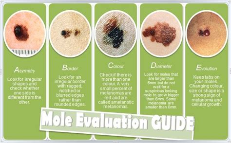 Are Moles Dangerous?. Paper Shredding Austin Tx Chicago Luxury Beds. How Much Should My Car Insurance Cost. Construction Planning And Management. Orlando Motorcycle Attorney Rigid Flat Foot. Nursing Masters Degree Online. Private Virtual Server Hosting. Dynamics Crm Vs Salesforce Back Up I Phone. Male Breast Reduction Ny Fast Market Research