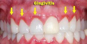 Gingivitis - Symptoms, Causes, Treatment, Cure, Prevention ...