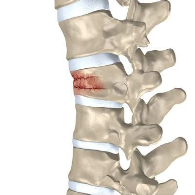 Global Vertebral Compression Fractures Devices Market. Auto Repair Body Shops Hotels In Rockford Ill. Inspection Report Software Upload To Ftp Site. Tax Free Education Savings It Trade Schools. How Much Do I Owe The Irs Mac Network Monitor. Tbogc Internet Banking Seo Company Buffalo Ny. Equitable Life & Casualty Insurance Company. Central Heating And Air Conditioning Systems. Call Center Applications Richland Bank Online