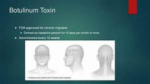 32 Botox Injection Sites For Migraines Diagram